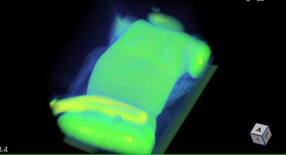 imaging_00088_volumerendering